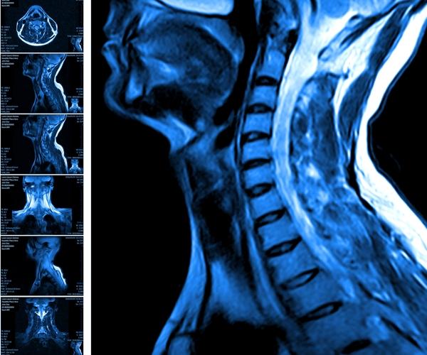 cosa la risonanza magnetica multiparametricadella prostata con mdc 2
