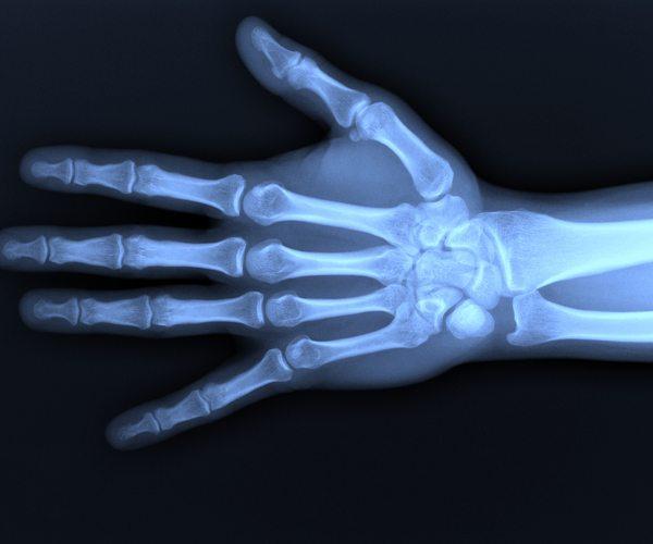 Radiologia tradizionale